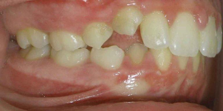 Thumb Sucking: Break the Unhealthy Dental Habit